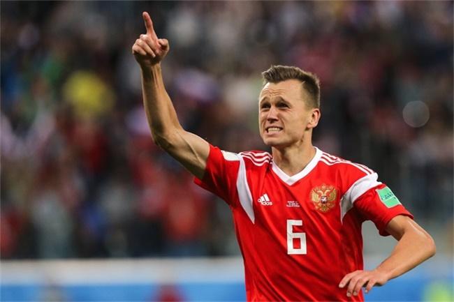 """从伤病缠身到揭幕战梅开二度,这个""""外国人""""成了俄罗斯的国家英雄"""